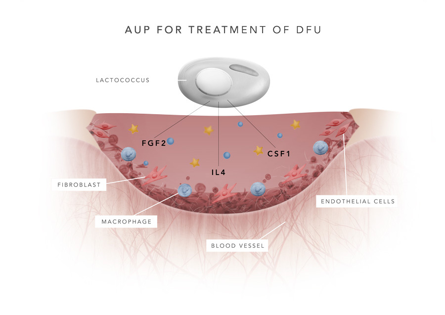 Improving the quality of life for DFU sufferers